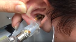 Hiii... Kalau kamu tidak rajin membersihkan kotoran telinga, bisa jadi penampakan kotoran telingamu seperti ini nih.