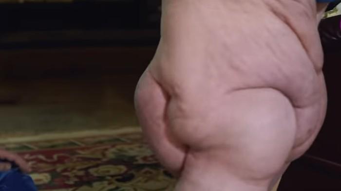 Wanita Ini Punya Satu Kaki Terbesar di Dunia, Beratnya 68 Kg. Foto: Youtube