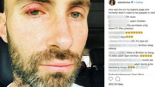 Adam Levine Lagi Bintitan, Tetap Ganteng?