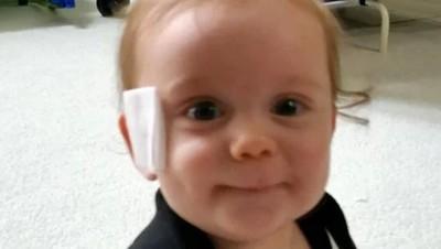 Cerita Bayi yang Wajahnya Terluka Gara-gara Empeng