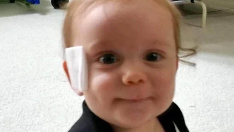 Cerita Bayi yang Wajahnya Terluka Gara-gara Empeng/ Foto: Kristen Milhone