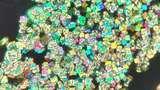 Cantik Tapi Berbahaya, Potret Kristal Asam Urat di Bawah Lensa Mikroskop