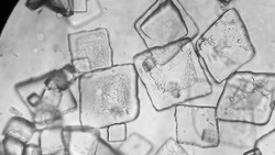 Akumulasi purin dalam kadar yang tinggi dalam tubuh bisa mengarah pada pengkristalan. Kristal cantik berbahaya itu dapat dilihat dari bawah lensa mikroskop.