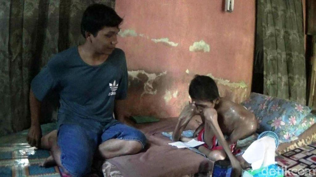 Dokter Sarankan Pengidap Kanker Otot di Purworejo Dirujuk ke RS Dharmais