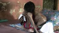 Tolong! Bocah Penderita Kanker Otot Ini Butuh Uluran Tangan