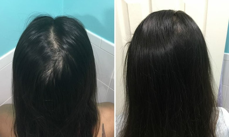Lihatlah, Betapa Mudahnya Menumbuhkan Rambut dengan Cara Ini