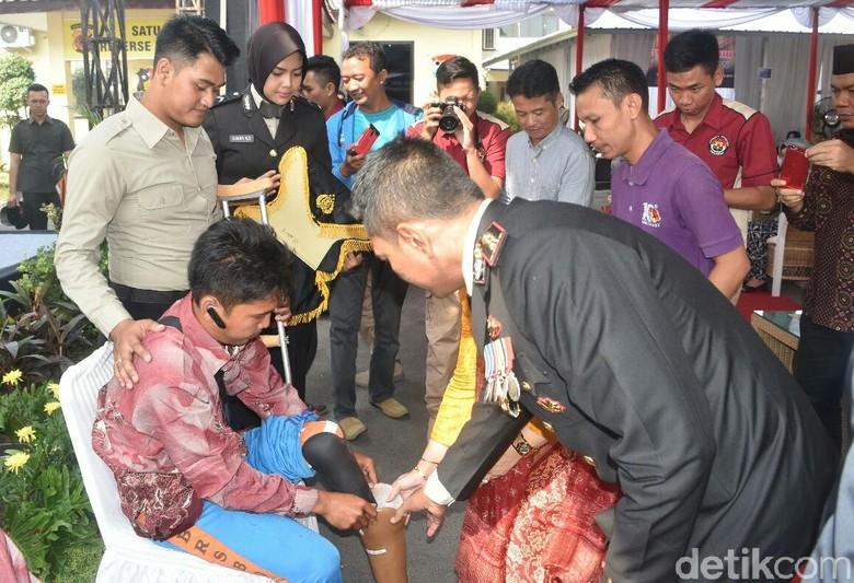 HUT Bhayangkara, Warga Cirebon Bahagia Terima Kado Kaki Palsu