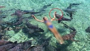 Ngeri! Selebgram Digigit Hiu Saat Liburan Bareng Pacar di Bahama