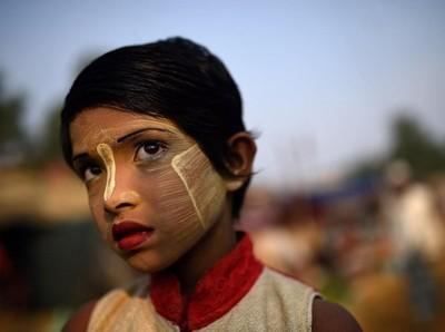 Foto: Gadis Rohingya yang Kuning Wajahnya