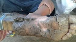 Di Pakistan terdapat satu keluarga yang anak-anaknya mengalami kejadian tak biasa. Lapisan kulit tebal tumbuh di tangan dan kaki mereka membuat sulit bergerak.