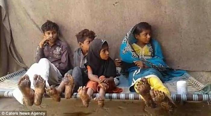 Habibullah Bhatti (19), Mehrunisa (15), Nasebullah Bhatti (10), dan Khairunisa (6) diduga mengalami kondisi langka epidermolytic hyperkeratosis. (Foto: Facebook)