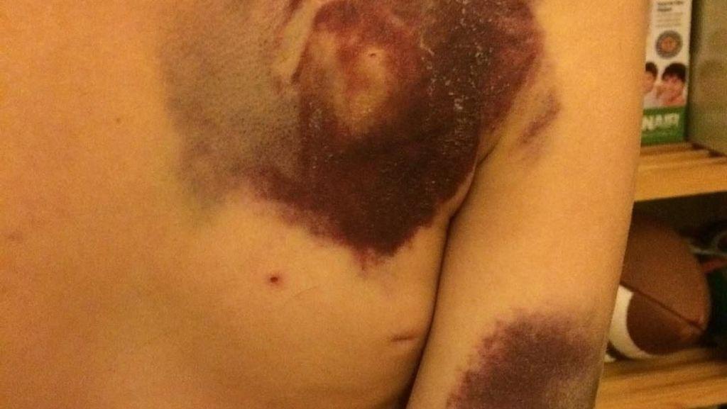 Foto: Contoh Memar dan Ruam yang Bisa Jadi Tanda Kanker Darah Leukemia