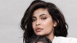 Cerita di Balik Luka Paha Kylie Jenner yang Terpampang di Sampul Majalah