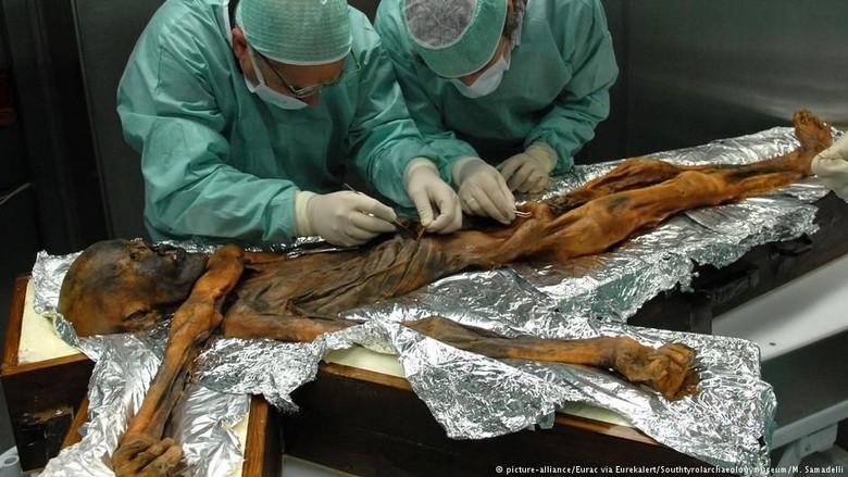Makanan Kesukaan Mumi Legendaris tzi Berusia 5.300 Tahun Terungkap!