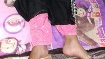 Siswi SMA Lumpuh Akibat Squat Jump, Sekolah Dinilai Lalai