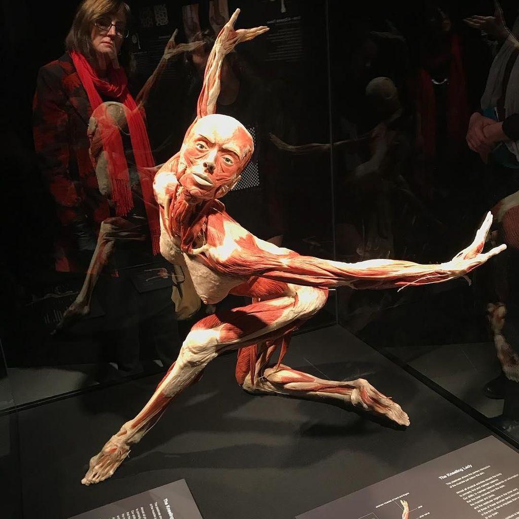 Museum Jenazah Surganya Para Pecinta Anatomi, Jangan Lihat Kalau Takut!