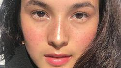 Freckles Lagi Ngetren, Bagaimana Cara Alami Mendapatkan Wajah Berbintik?