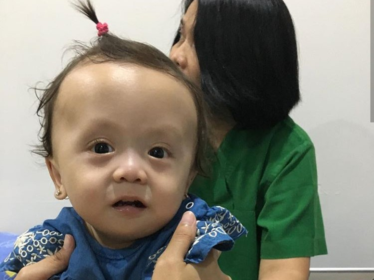 Ini dia Ziona Eden Alexandra Panggabean, putri bungsu Joanna Alezandra. Di usia 11 bulan, Zio, panggilan akrabnya, didiagnosis campomelic dysplasia (CMD) yang merupakan penyakit langka. (Foto: Instagram @joannaalexandra)