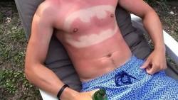 Ketika berlebihan mengekspos diri ke matahari, hati-hati saja badanmu bakal punya tato temporer. Ya, bisa dibilang matahari merupakan seniman tato. Penasaran?