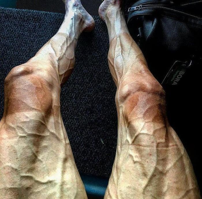 Pembalap sepeda profesional, Pawel Poljanski mengunggah foto kakinya dipenuhi dengan otot-otot seperti itu setelah menyelesaikan tahap ke-16 dalam kejuaraan paling bergengsi dunia, Tour de France. (Foto: Instagram/p.poljanski)