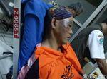 8 Orang di Ciamis Alami Luka Bakar Akibat Ledakan Pabrik Kayu