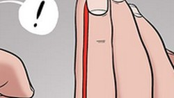 Kamu pasti pernah mengalami kulit samping kuku terkelupas kan? Nah kalau lihat ilustrasi ini pasti bikin ngilu deh.