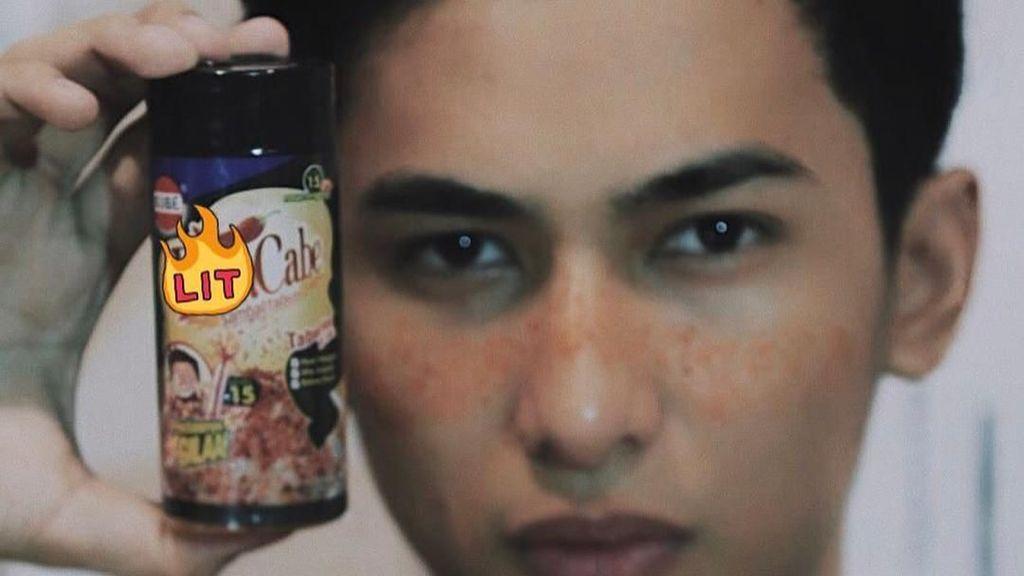 Pria Ini Ikuti Tren Makeup Freckles Pakai Bubuk Cabai, Ngenes Tapi Kocak