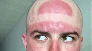 Foto-foto Ini Buktikan Matahari Bisa Jadi Ahli Tato yang Keren Tapi Seram (2)