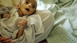 Masalah anak-anak yang malnutrisi dan stunting tidak hanya dialami oleh Indonesia. Beberapa negara yang miskin, terlibat konflik, atau bencana memilikinya.