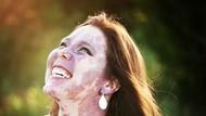 Inspiratif! Ini Kisah Dramatis Wanita yang Punya Tanda Lahir Sewajah