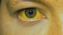 Tubuh selalu memberi sinyal lewat beberapa bagian, seperti wajah. Saat kita alami kondisi kesehatan tertentu, ada beberapa tanda yang bisa kita perhatikan.