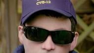Alergi Matahari, Pria Ini Pakai Topeng Replika Wajahnya Sendiri