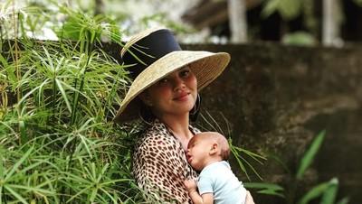 Mengenal Plagiocephaly, Kondisi yang Dialami Anak Chrissy Teigen