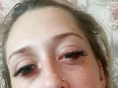 Ilustrasi wanita yang matanya sakit akibat extension bulu mata.