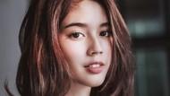 Ada Penyakit yang Belum Terungkap, Fay Nabila Dianjurkan ke Malaysia