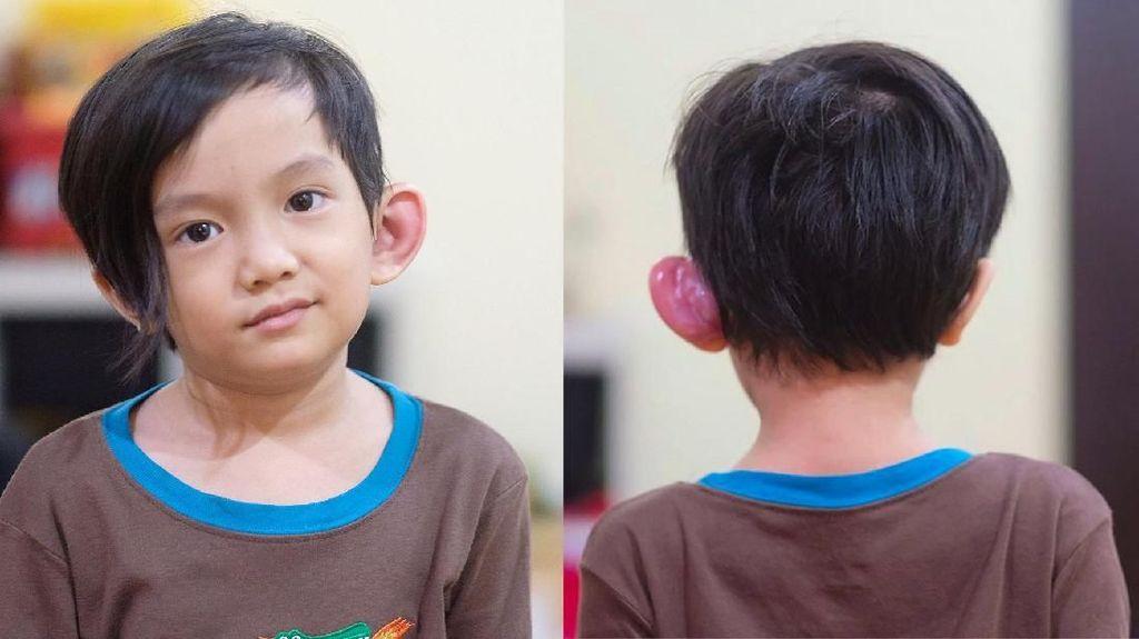 Sinus Preauricular, Kondisi yang Bikin Telinga Anak Anji Merah dan Bengkak