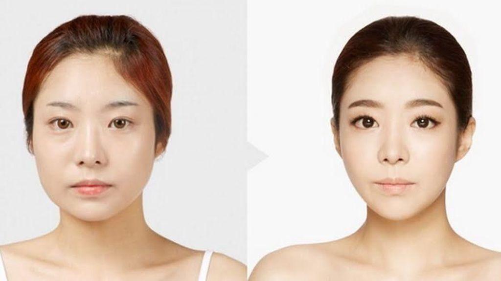 Hii Serem! Operasi Berbahaya Ini Dilakukan Artis Korea Supaya Jadi Cantik