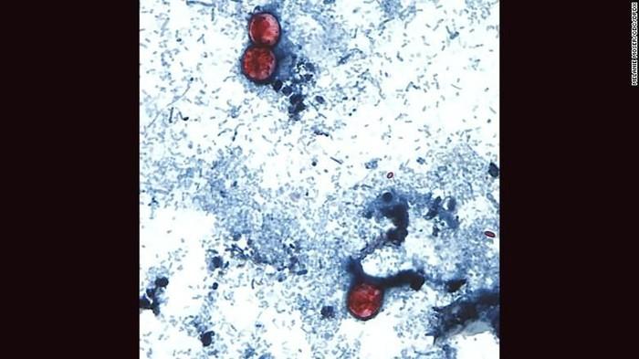 Angiostrongylus cantonensis yang terdeteksi pada tubuh pasien. (Foto: CNN)