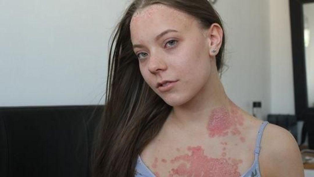 Dikritik Punya Ruam Merah di Kulit, Wanita Ini Beri Pesan Inspiratif