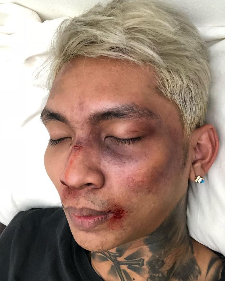 Shopee Tak Mau Komentari Aksi Prank Young Lex yang Ngaku Dipukuli