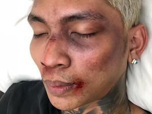 Warganet Anggap Aksi <i>Prank</i> Young Lex yang Ngaku Dipukuli Fitnah