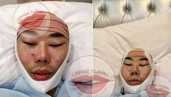 Disebut Operasi Plastik, Ini Foto-foto Roy Kiyoshi Dulu hingga Kini