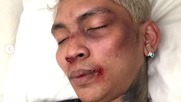 Jujur Dong Young Lex, Babak Belur atau Makeup?