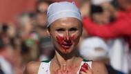 Walau Hidung Berdarah Pelari Putri Belarus Juarai Maraton Eropa