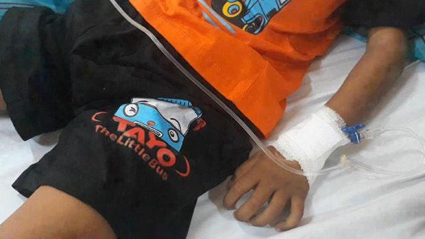 Bocah tersebut dirawat di RSUZA Banda Aceh