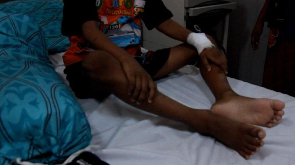 Bocah di Aceh Lumpuh Usai Imunisasi MR, Dokter: Bukan Efek Vaksin