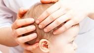 Penjelasan Dokter tentang Benjolan di Kepala Bayi