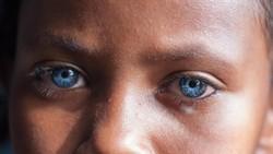 Sindrom Waardenburg adalah kondisi genetik langka yang membuat warna bola mata seseorang menjadi biru indah nan menyala. Seperti ini lho mereka.