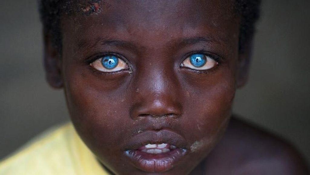 Idap Sindrom Waardenburg, Bocah Ini Punya Mata Biru yang Sangat Indah