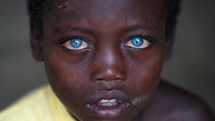 Abushe dengan mata biru karena Sindrom Waardenburg. Foto: Instagram/ericlafforgue
